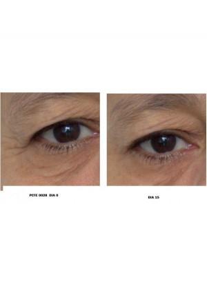 Dermanutrix Kollageeni Jook, 42 annuspakki, enne ja pärast
